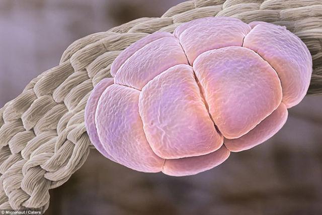 Pyłki roślin pod mikroskopem 14