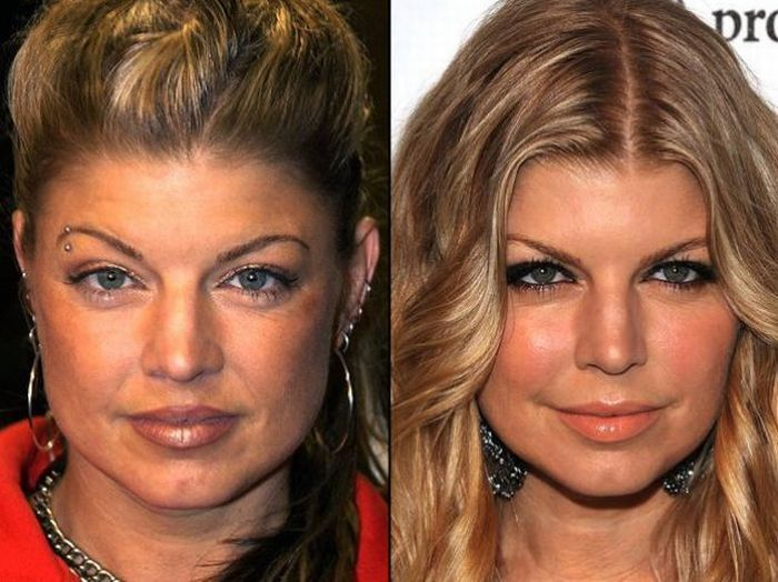 Gwiazdy przed i po operacjach plastycznych 4