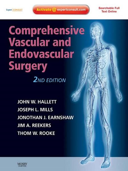 Comprehensive Vascular and Endovascular Surgery: Expert Consult - Online and Print, 2nd Edition